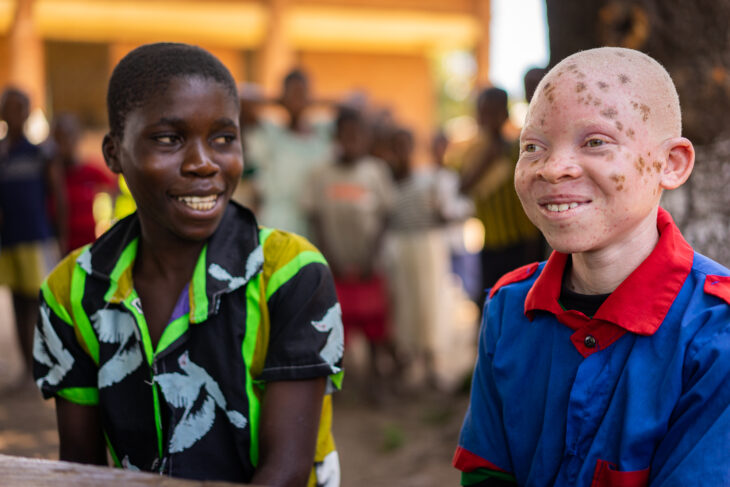 Breaking barriers for education of children with albinism